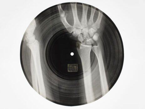 X-Ray and Music Record
